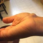 足や指、手首にガングリオン!原因って何?何科を受診すれば?
